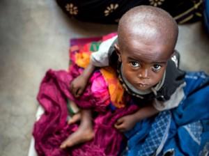 Un niño que, como tantas otras personas, sufre desnutrición en la provincia de Kasai, en la República Democrática del Congo. Fuente: UNICEF